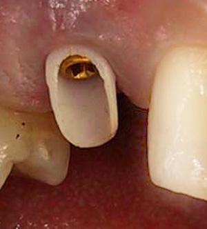 Dental Implant with zirconium abutment